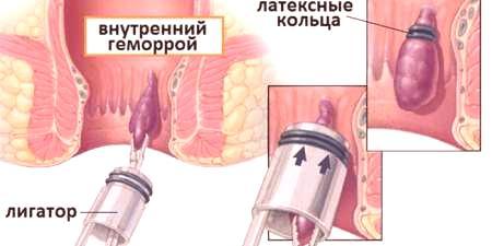 hemoroidy kvůli análnímu sexu